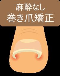 麻酔なし巻き爪強制
